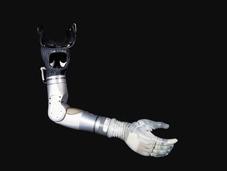 这款机械义肢让截肢者竖起了大拇指